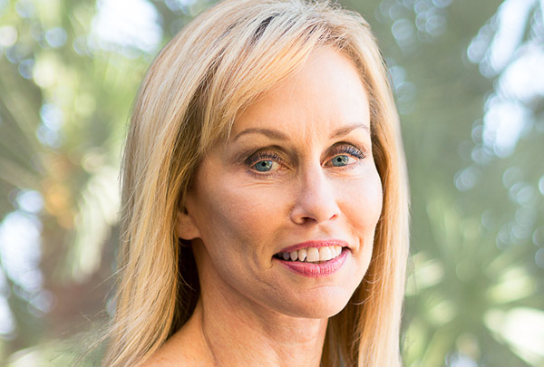 Orange County Facelift by Newport Beach Facial Plastic Surgeon Dr. Kevin Sadati