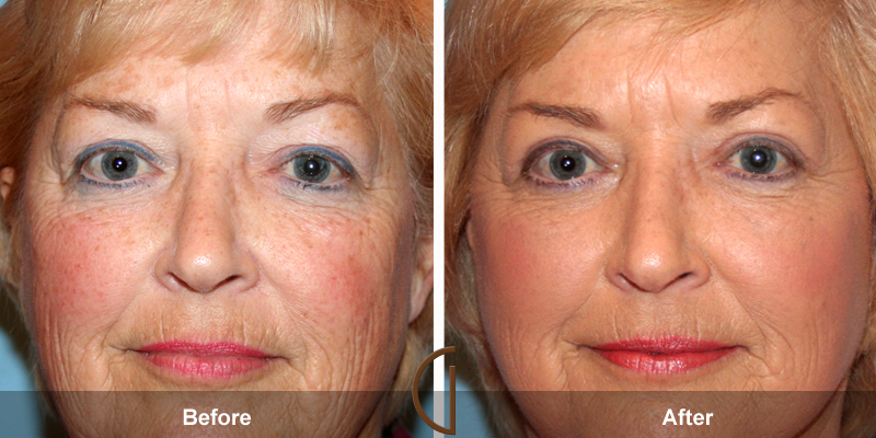 Before and after gallery for Orange County, Newport Beach facial plastic surgeon Dr. Kevin Sadati