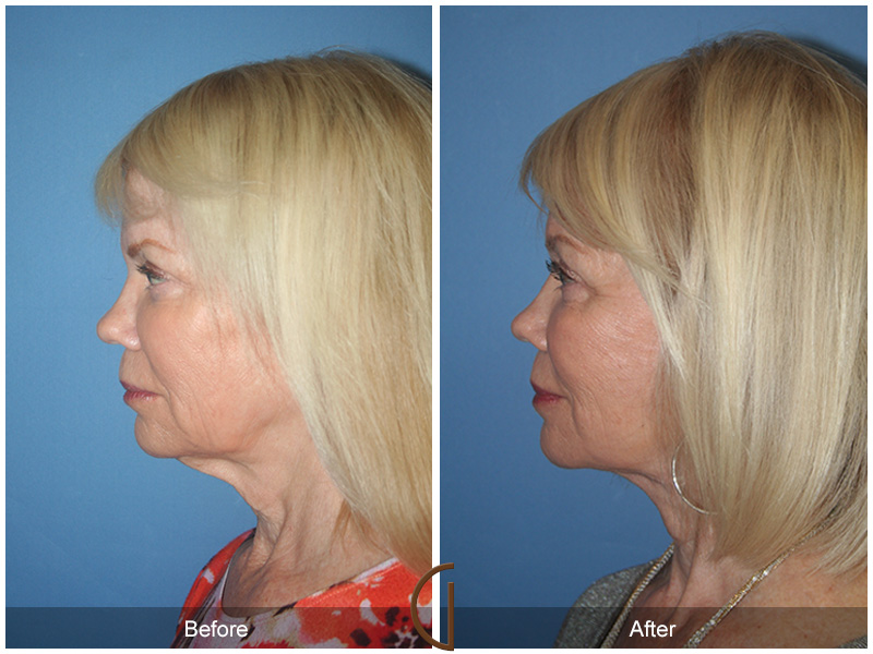 Before and after gallery for female facelift patient 3